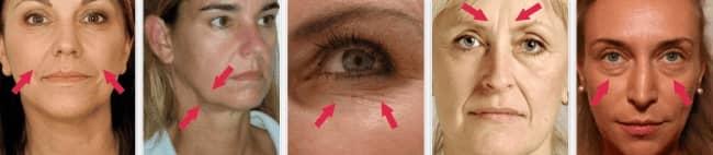 iminuzione graduale dell'elasticità della pelle