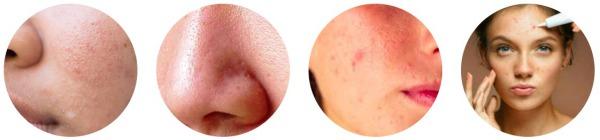 acne, punti neri, brufoli