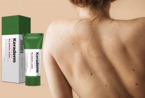 KeraDerm – Una crema naturale con una formula lenitive e biologica contro Papillomi e verruche