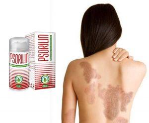 Psorilin: gel lenitivo contro la psoriasi