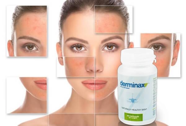 derminax resultati, donna, acne, brufoli