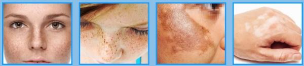 crema bright skin, ultimate whitening