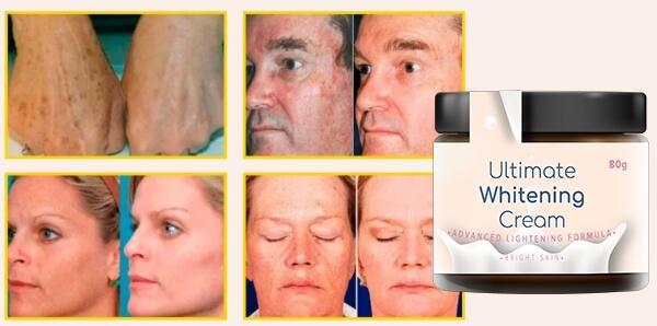 Bright Skin Ultimate Whitening Cream opinioni recensioni