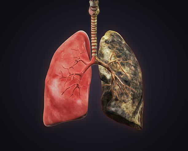 polmone, sigarette