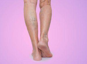 Vene varicose - Cause e trattamento - Tutto ciò che devi sapere