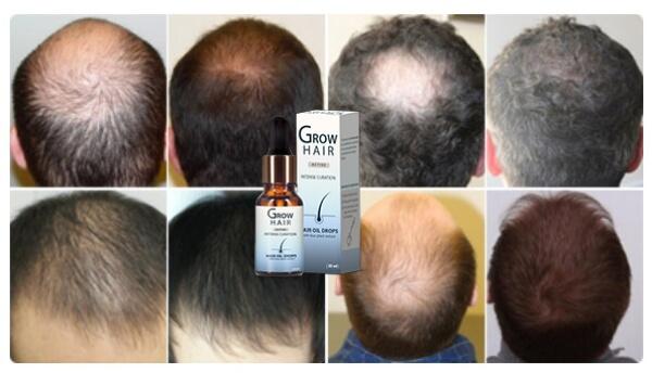 Grow Hair opinioni pareri