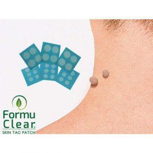 Formu Clear Skin Tag Patch: un valido aiuto contro verruche e fibromi penduli. Prezzo in Italia e opinioni sui forum
