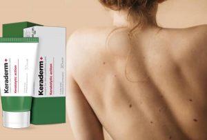 KeraDerm+ – formula lenitive e biologica contro papillomi e verruche